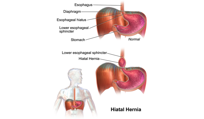 Handling Hiatal Hernia with Diet, Lifestyle Changes, Treatment